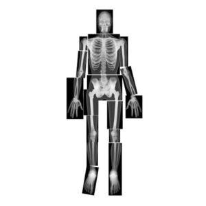 radiographie-x-rays-roylco-corps-humain-montessori-reggio-education